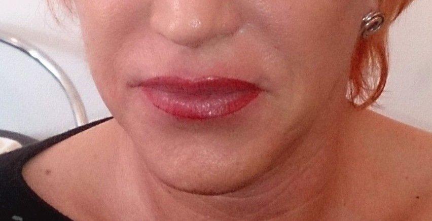 Korrektur der Lippe