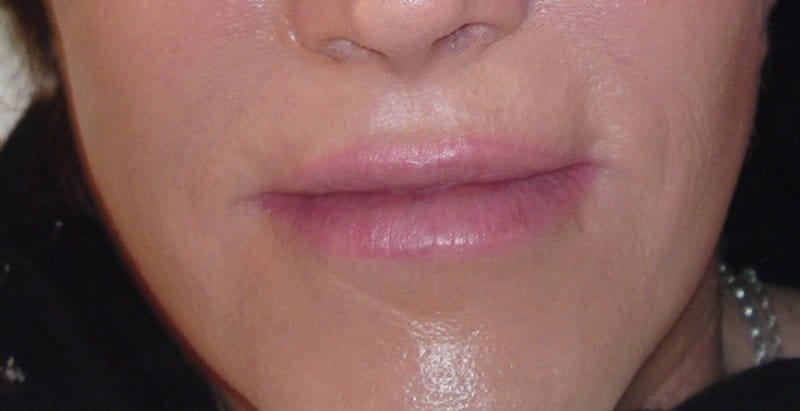 Lippenkorrektur Permanent Make up
