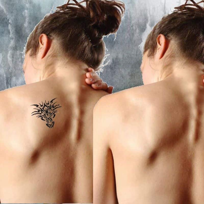 Tattooentfernung Rottweil Permanent Make up entfernen Balingen Hechingen