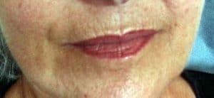 Lippenfältchen entfernen Rottweil