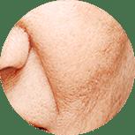 Falten schlaffe Haut entfernen Ihr Kosmetikstudio Villingen-Schwenningen für effektive Behandlungen