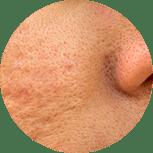 Porenverfeinerung mit Kosmetik Villingen-schwenningen und cellulite weg