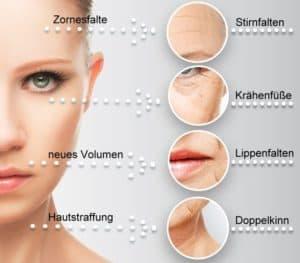 Doppelkinn entfernen im Kosmetikstudio Rottweil besser als Ultraschall und Microdermabrasion